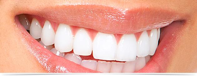 Clareamento Dental Zona Norte Sp Sorriso Santana