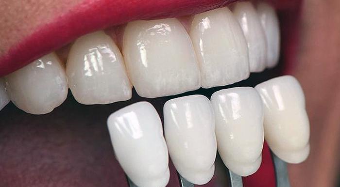 Lente Dental e Faceta de Porcelana - Clínica Odontológica Sorriso Santana Estúdio Oral